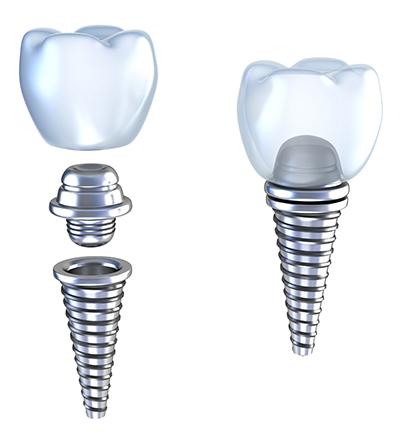 implants fail