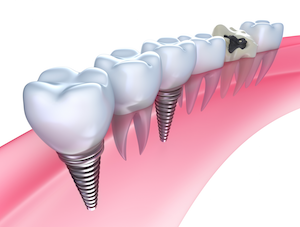 get dental implants