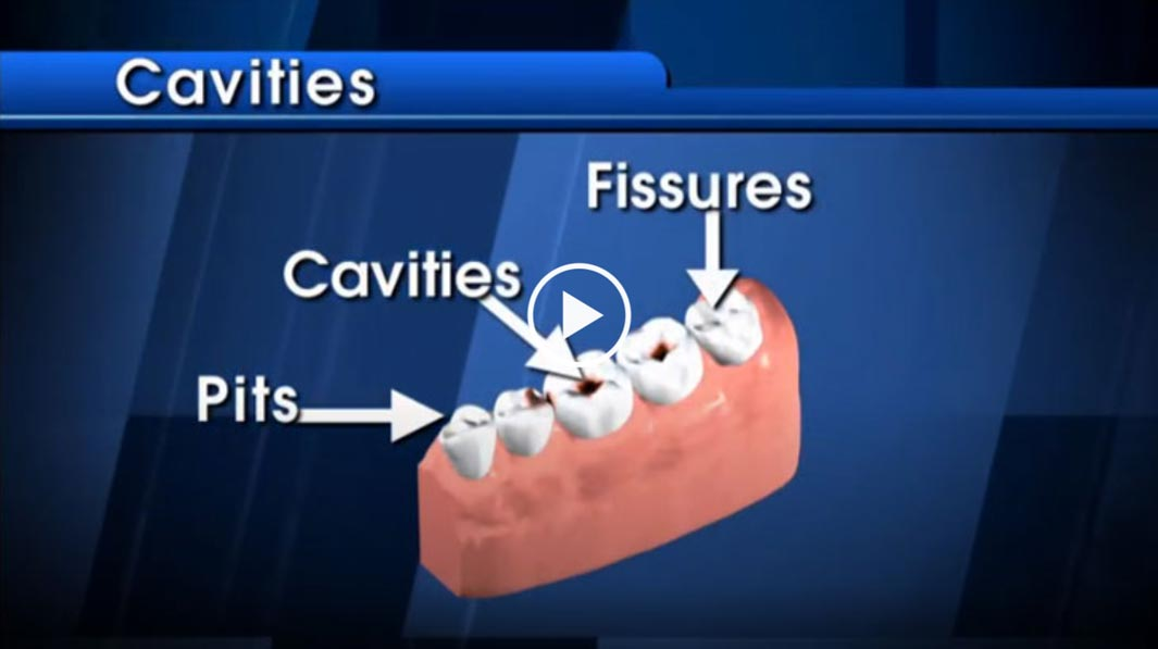 cavities-video