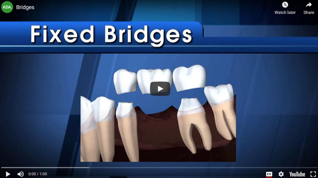 fixed-bridges