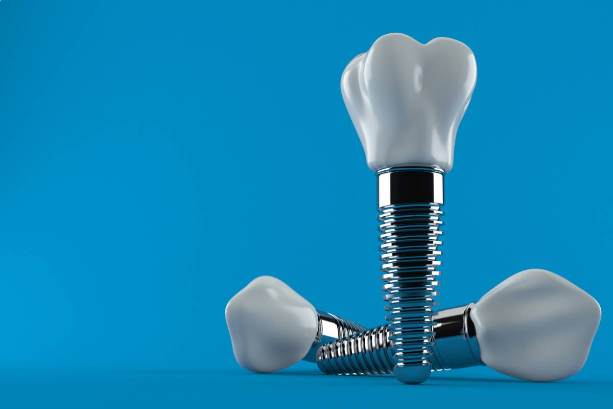 how long after extraction can I have dental implants.