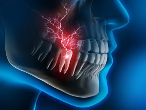 tooth pain image