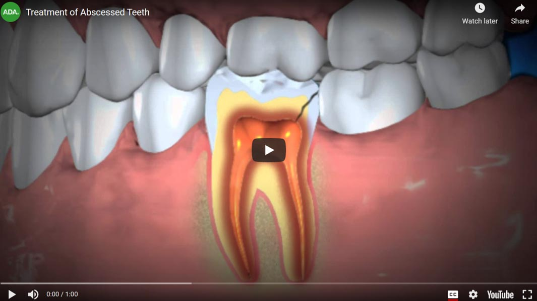 root-canal-video